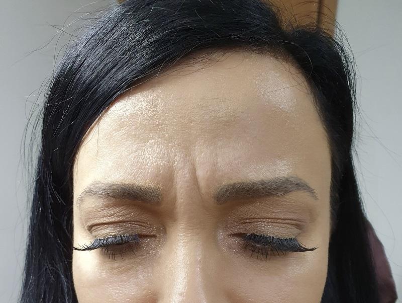 ботокс срещу бръчки